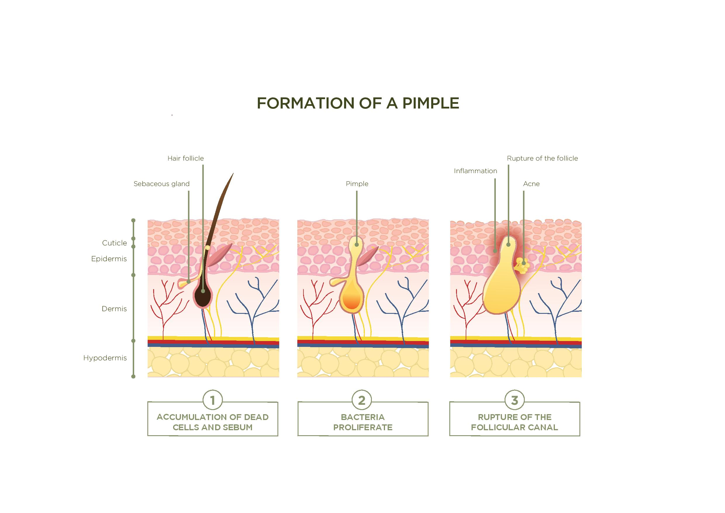 blog - the formation of a pimple: did you know that ... back skeleton diagram back acne diagram